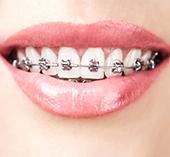 braces - la plaza dental